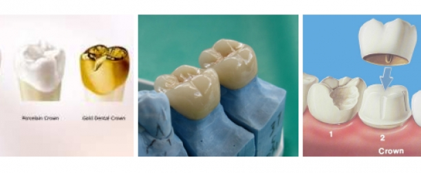 Estetik Diş Hekimliği